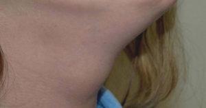 thyroglossal cyst