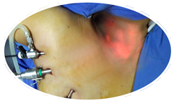 Endoscopic Thyroidectomy through axilla