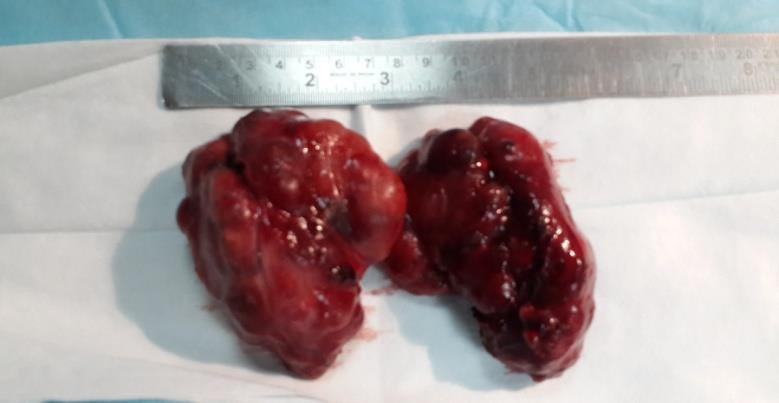 Thyroid removed via Endoscopic Thyroidectomy
