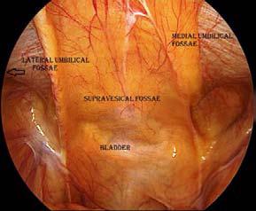 Inguinal Region - Infraumbilical fossae