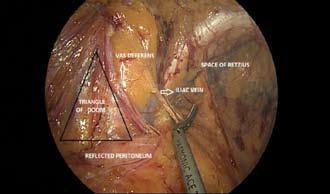 Inguinal Anatomy with Peritoneum Incised - Triangle of Doom